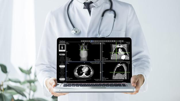 doctor-cosecha-que-muestra-computadora-portatil-pantalla-vacia_23-2147896925 (1)