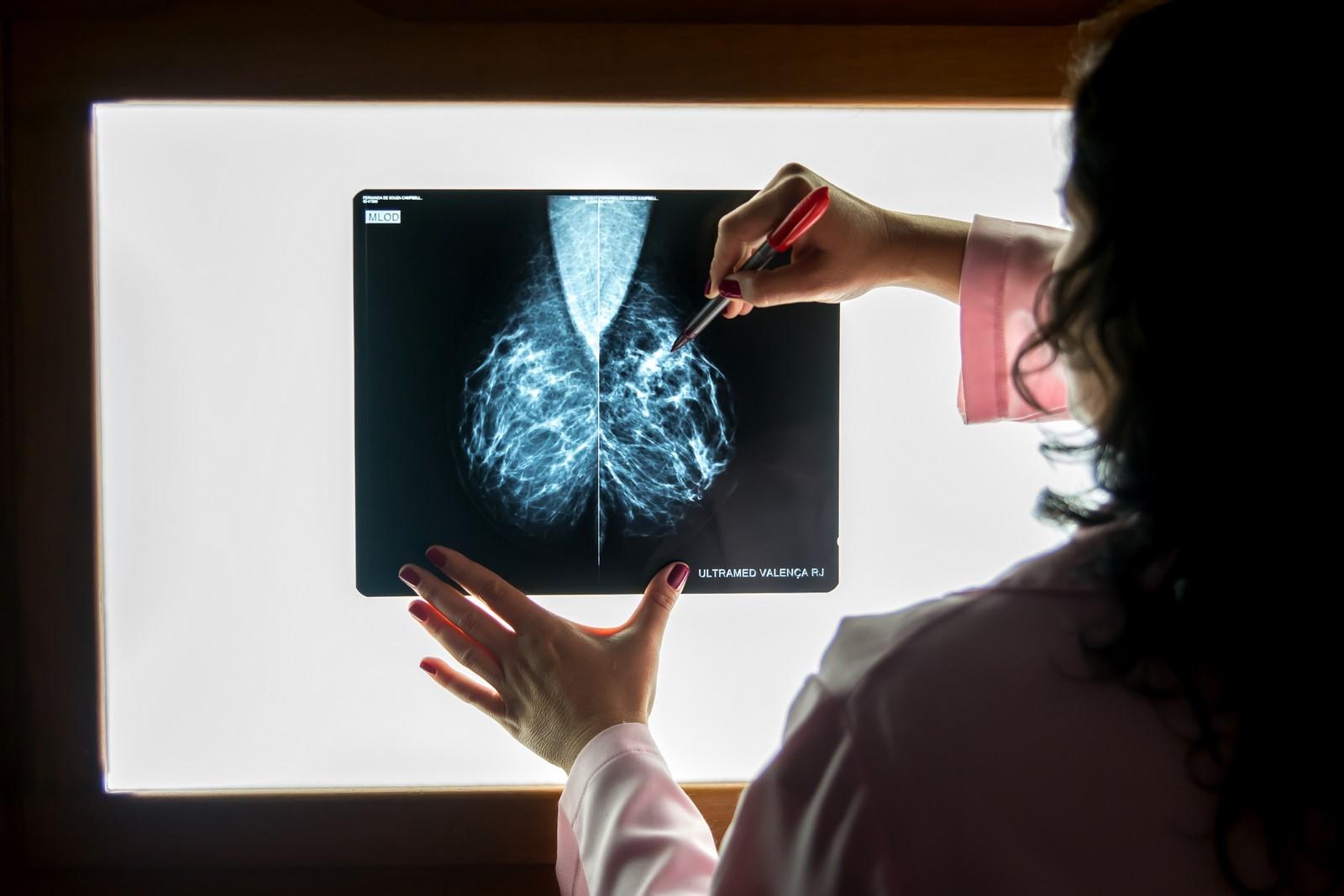 mamografia-02