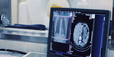 tomografia-computadorizada-tesla-imagem-brasilia