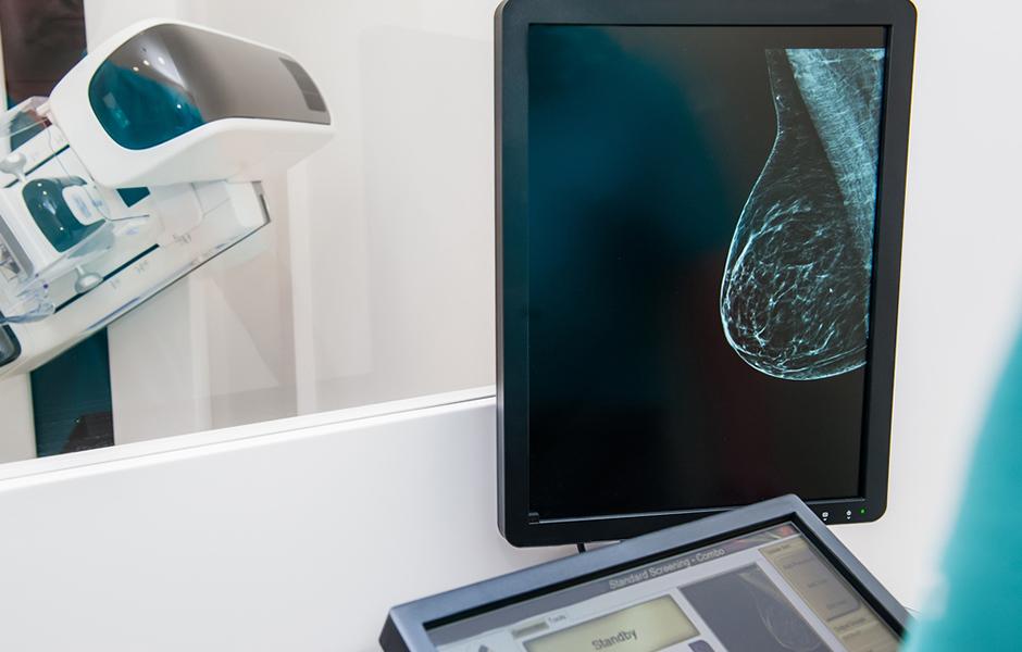 mamografia-digital-medcloud