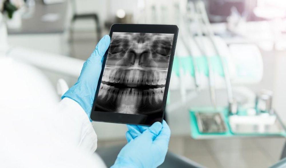 telerradiologia-e-radiologia-odontologica